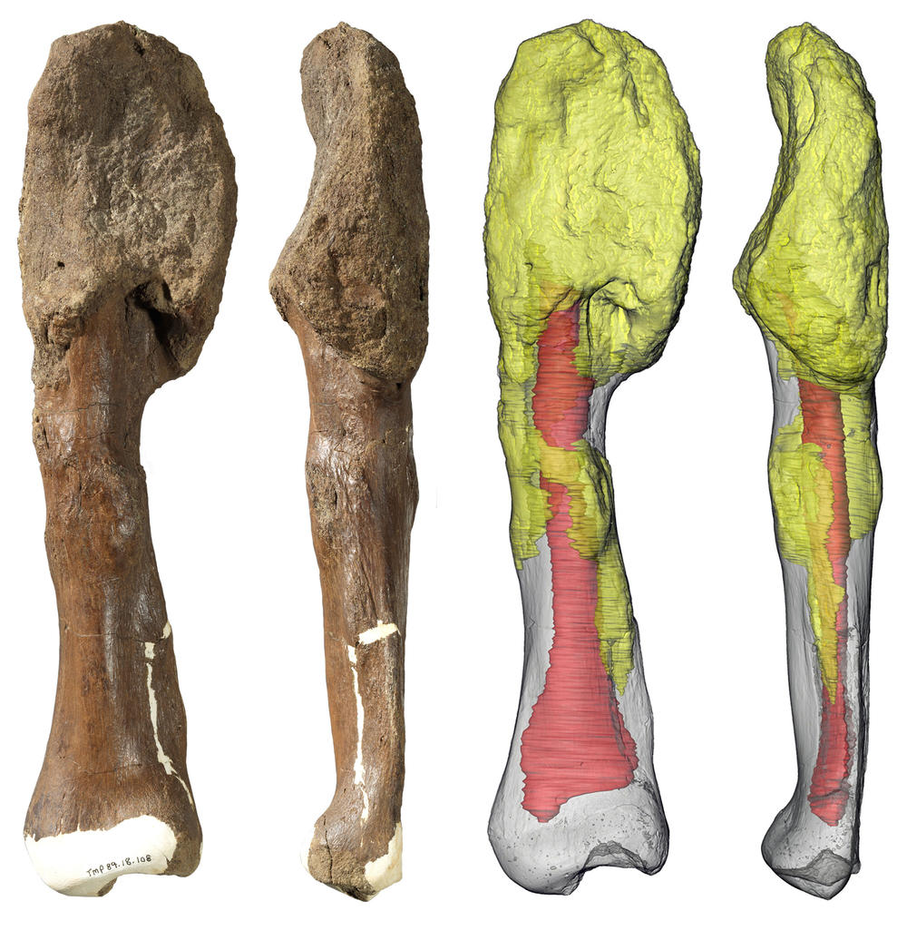Two views of the <em>Centrosaurus apertus</em> shin bone (fibula) with malignant bone cancer (osteosarcoma). The extensive invasion of the cancer throughout the bone (yellow) suggests that it persisted for a considerable period of the dinosaur's life and may have spread to other parts of the body prior to death.