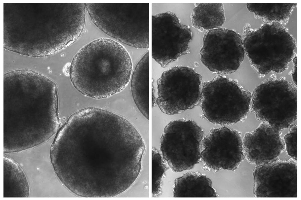 Compared with brain organoids grown from ordinary human cells (left), the organoids with the Neanderthal gene variant have a rough outer layer.